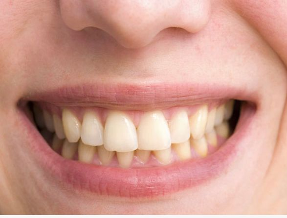 7 Surprising Ways You Discolor Your Teeth   https://www.sharecare.com/health/dental-oral-health-teeth/slideshow/surprising-ways-you-discolor-your-teeth#slide-2  #teeth #whitening #smile #beauty #beauty-tips