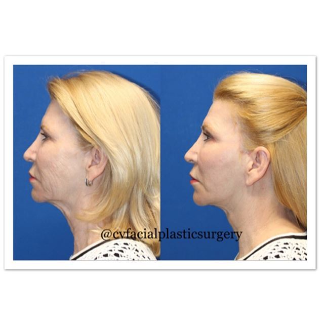 Remarkable surgical and laser results, only 3 months post-op!  Procedures: short incision face lift with extended neck lift, brow lift, perioral fat transfer, and full face laser resurfacing 👨🏽⚕️😷#sciton #dramirkaram #cvfps #cvfacialplasticsurgery @dramirkaram #lajollalocals #sandiegoconnection #sdlocals - posted by CV Facial Plastic Surgery  https://www.instagram.com/cvfacialplasticsurgery. See more post on La Jolla at http://LaJollaLocals.com