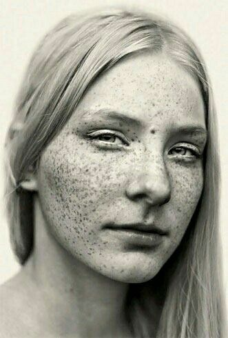 ho made freckles iconic - 620×919