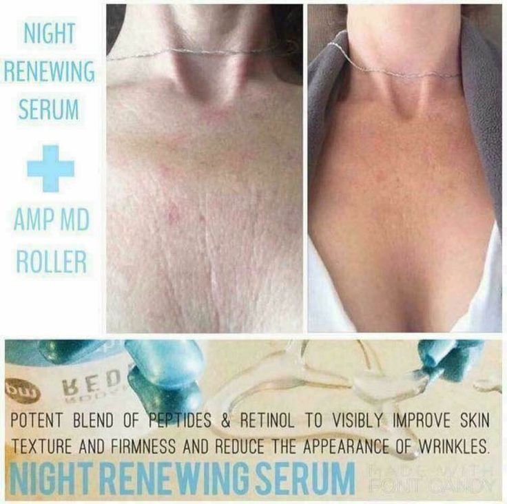 I Love the Amp MD Roller  Think Rodan+Fields can only fight wrinkles on your face? Think again! Look at this client's results using our AMP MD roller (lasts for 1 year!) and Night Renewing Serum (my fave)!  Both products come in the Amp MD System, or with the REDEFINE AMP It Up special or REVERSE AMP It Up special.  Don't forget our 60 day, empty bottle, money back guarantee! Let me help you get started!