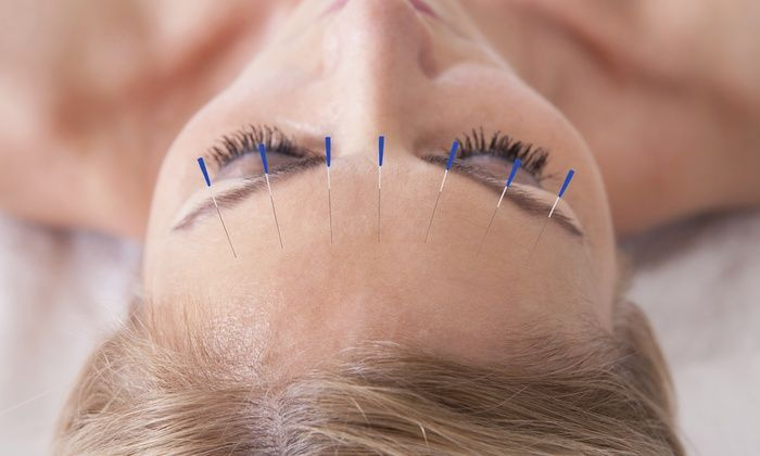 Summary on Acupuncture Services at St Louis Acupuncture