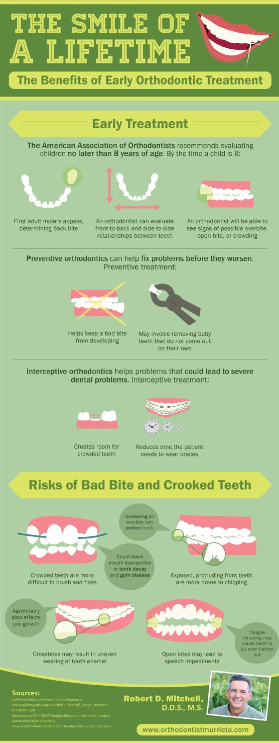 Is your child over the age of 7? If yes, she should have already had her first orthodontic evaluation. Learn more about the benefits of early orthodontic treatment by taking a look at this infographic. Source: http://www.orthodontistmurrieta.com/658692/2013/03/08/the-smile-of-a-lifetime-benefits-of-early-orthodontic-treatment.html