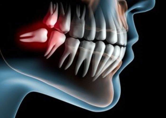 At Doncaster Hill Dental, our qualified dentist team provide highly predictable and exceptional tailor-made solutions and care for wisdom teeth removal. So, we become the first choice in dentistry market.