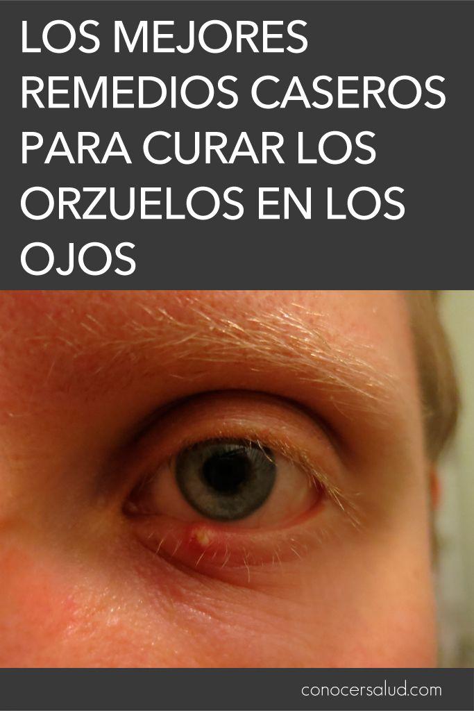 pequeña protuberancia en el ojo