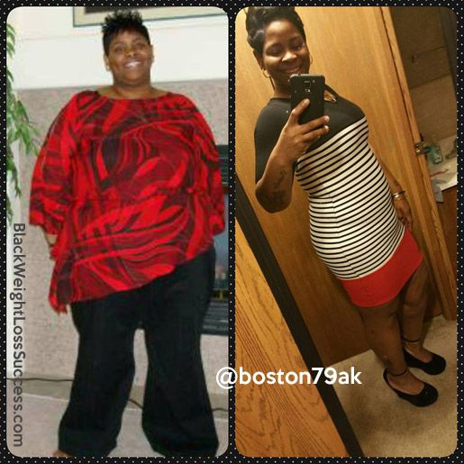 Anissa lost 160 pounds with surgery, exercise and changing her lifestyle.