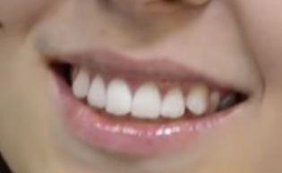 Лазерное отбеливание зубов (цена в Сочи снижена!)   http://kedrclinic.ru/lazernoe-otbelivanie-zubov-cena-v-sochi.html Если вы хотите отбелить зубы, то лазерное отбеливание зубов (цена в Сочи снижена!) – идеальное решение.