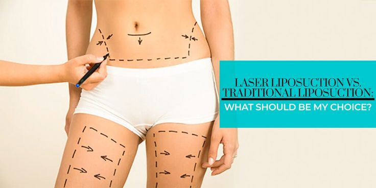 Want to know about the difference between traditional and modern liposuction techniques, then read the whole post.
