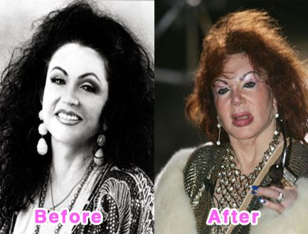 Jackie Stallone. Hey Sly, you need to make like Rocky on your mom's plastic surgeon.