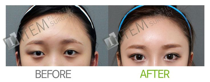 Plastic surgery, cosmetic surgery, korean plastic surgery, eyelid surgery, upper eyelid surgery, asian plastic surgery, asian eyelid surgery, non incisional eyelid surgery, partial incisional eyelid surgery, full incisional eyelid surgery, ptosis correction, sleepy looking eyes, before and after pictures, beauty