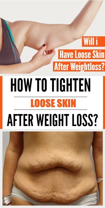 Excess skin after weight loss.. What do guys think...?