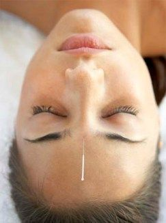 Can Acupuncture Treat Migraine Headaches Alternative Medicine