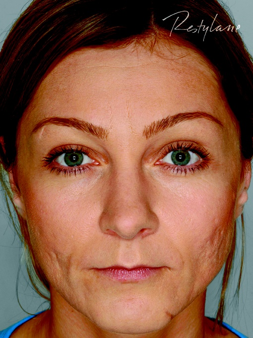 FØR: Arr kan være skjemmende i ansiktet. Restylane kan korrigere slik at huden blir jevnere.