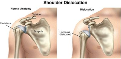 Unless they were traumatic injuries, #shoulder dislocations can frequently be prevented. Find out how a physical therapist can help! #physicaltherapy