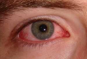 El síndrome del ojo seco | Conoce sus síntomas, principales causas y factores de riesgo, además de los tratamientos recomendados y cómo prevenirlo. Lee más: https://saludtotal.net/sindrome-de-ojo-seco/