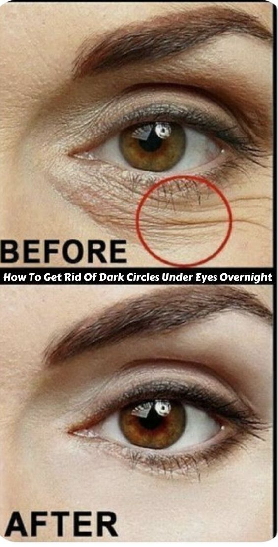 How To Get Rid Of Dark Circles Under Eyes Overnight in ...