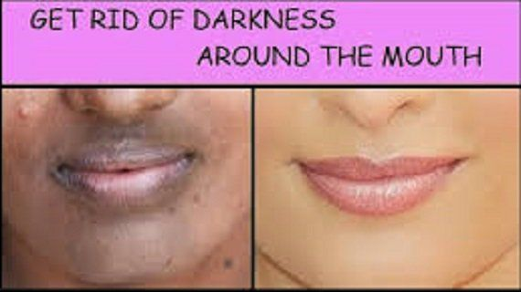 Get Rid Of Darkness Around Lips And Get Even Skin Tone In Just A