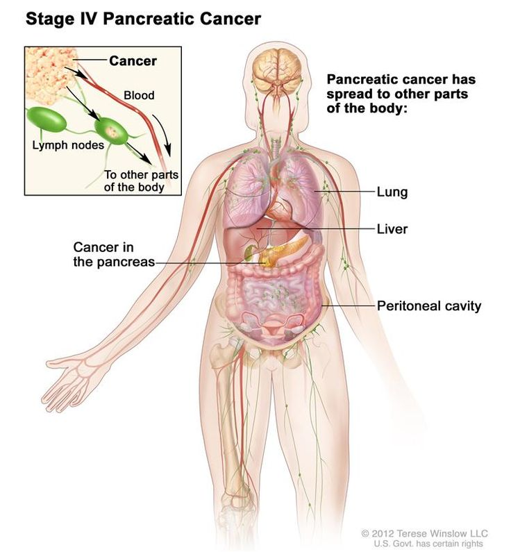 17 Best Images About Pancreatic Cancer On Pinterest High