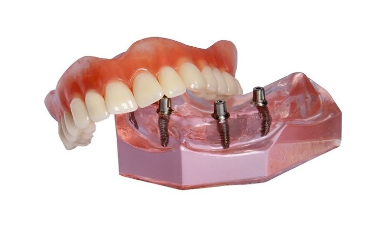 Full-Fledged Prosthetic Devices That Replace Missing Teeth  #DentureRepairs