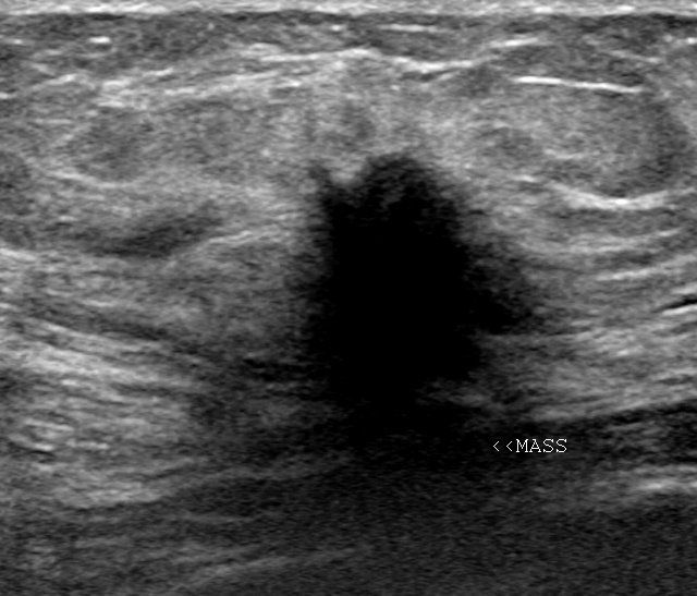 Wk 2 Breast Ultrasound Imaging Breast Cancer With Spread To Lymph