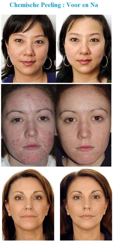 Wat is een chemische peeling? Bij een chemische peeling wordt op de huid een chemische vloeistof aangebracht die in de huid trekt en deze in lichte mate 'beschadigt'. Hierdoor wordt de huid gedwongen zich te herstellen en te vernieuwen door het aanmaken van nieuwe huidcellen. Wanneer dit gebeurt, worden oppervlakkige rimpels geëgaliseerd en worden oneffenheden minder zichtbaar. Ook pigmentafwijkingen kunnen op deze manier worden aangepakt.