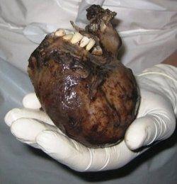 teeth growing on a heart.
