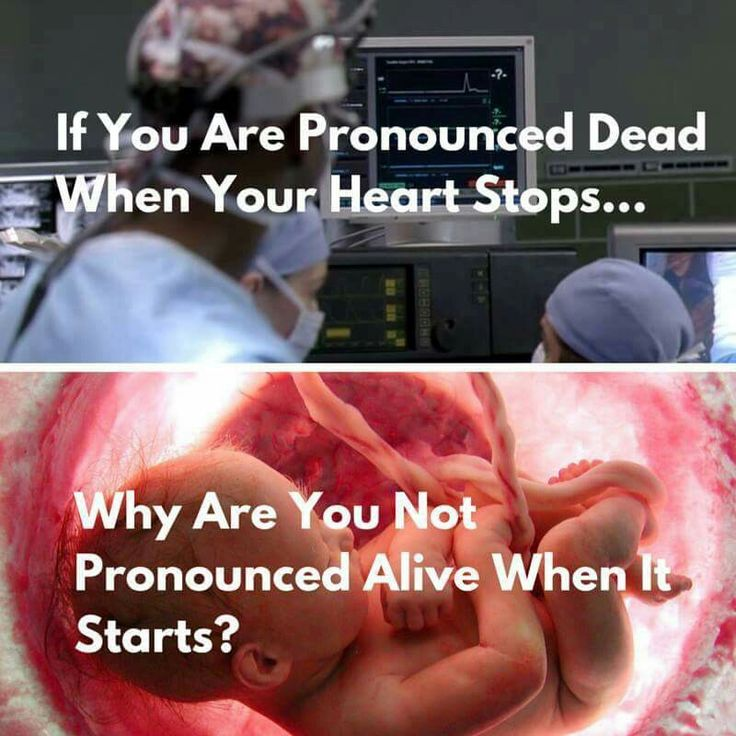 I know right. I don't see how people can say that a heart beating is not alive human. Only a clump of tissue
