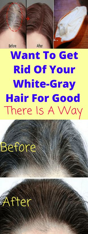 The hair greying process was related to gradual aging and thus, it was common after the 40s. But now with the changes in the environment and other health-related aspects, the grey hairs become common among teenagers too.This is a matter of fact which we have to consider very seriously. It can happen to men and women …