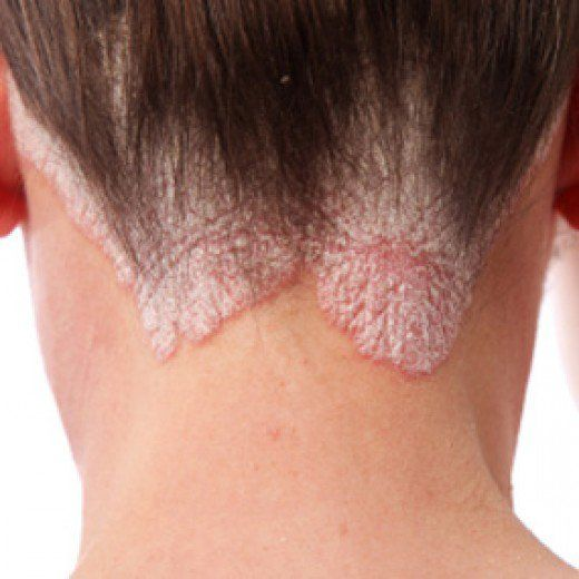 Natural Home Remedies For Really Itchy Scalp