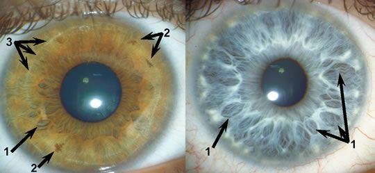 'crypts' lines going away from the iris, labelled 1 suggests a warm, tender-minded person. Furrows labelled 3 impulsive. ---Same gene Pax6, which affects left anterior cingulate cortex of the brain and is associated with approach-related behaviours also induces tissue deficiencies in iris.