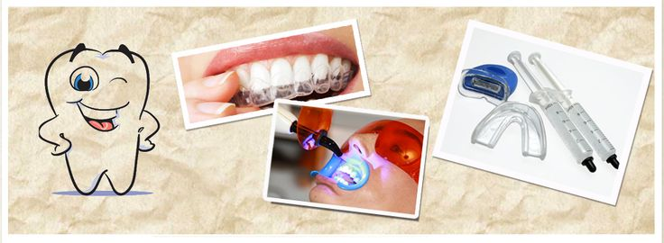 #Blanqueamiento dental #laser y otros tipos - CLVM