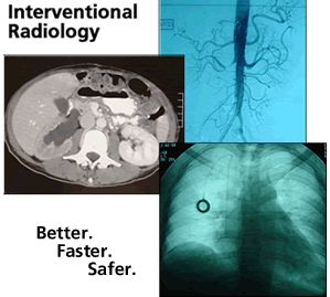 Want to learn to work in Interventional Radiology in Atlanta?  Hiring ICU or Cath Lab experienced RNs - send me a PM!