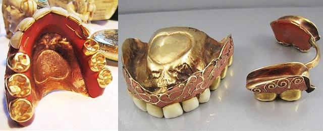 RP by http://drandreahayeck.com Linden NJ's  wonderful family dentist.  gold antique dentures