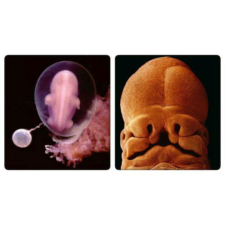 Embrión de 4 semanas (izquierda) y de 5 semanas (derecha). ¿Es humano?