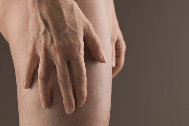 ¿Puede una alergia alimentaria causar erupciones en las nalgas y los muslos internos? | Muy Fitness