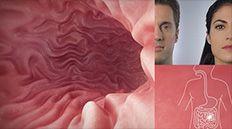 Check in with Dr. Siegel regarding Crohn's disease.