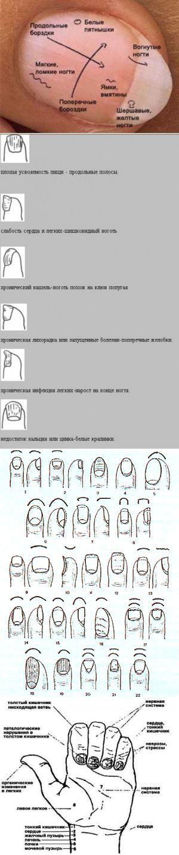 (+1) тема - Диагностика по ногтям в восточной медицине | ВСЕГДА В ФОРМЕ! | Здоровье | Постила