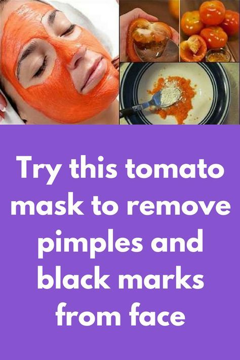 Try this tomato mask to remove pimples and black marks from face