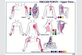 UPPER BODYCarpal Tunnel Syndrome   GadiBody.com   Neuromuscular Therapy - Strain Counterstrain Pain Relief - Los Angeles, Santa Monica CA