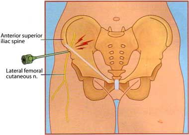 the lateral femoral cutaneous nerve | hip pain.ouch, Muscles