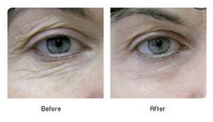 Carbon Dioxide Laser Skin Resurfacing - Washington, D.C.