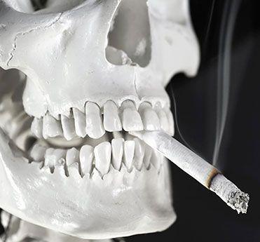 SDB Studio Dentistico Balestro: Fumo e impianti, rapporto difficile.