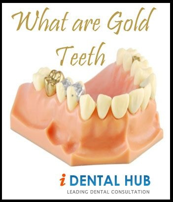 People were not very open towards gold teeth but as soon as they realized how aesthetically good looking having gold teeth is, they went to the dentists to inquire about how to have gold teeth implants.