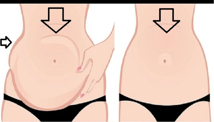 Belly fat is problem that affects both men and women especially after 30. But being bloated is completely different situation.    Bloating is a common condition that can happen even when you haven't eaten a large meal.