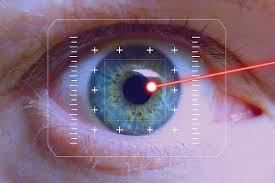 What to expect during Laser Eye Surgery