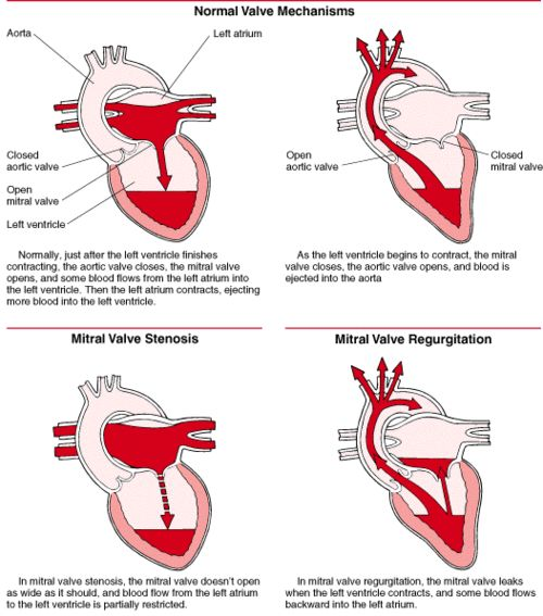 mitral valve stenosis pathophysiology | ... Mitral valve Repair: the Ultimate Evolution in Mitral Valve Surgery