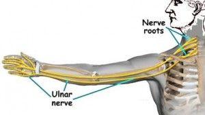 Ulnar Nerve Entrapment - chiropractor freehold NJ