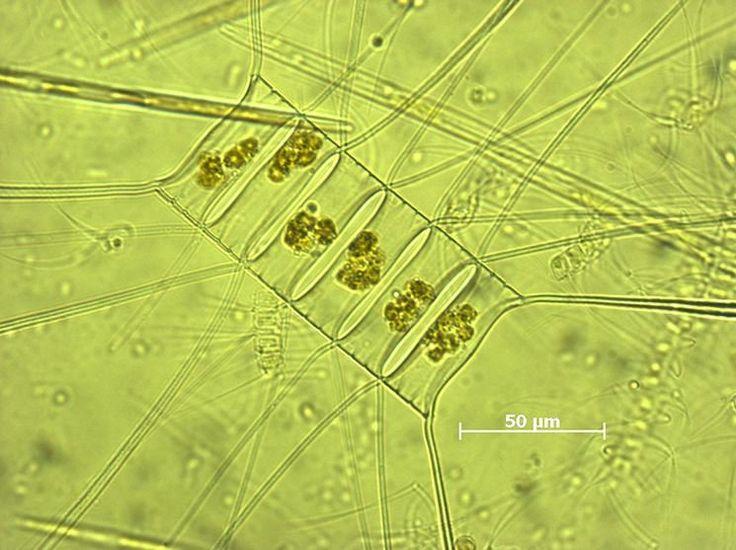 Marine Diatoms | Marine plankton - 68.2KB