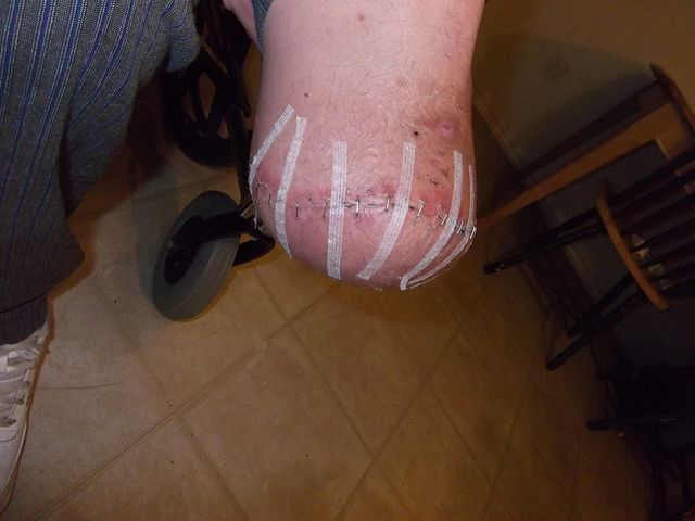 Below the knee amputation is surgery to remove all or part of your foot or your leg below the knee cap. It is also called BKA. You may need a BKA for a health problem that causes poor blood flow, such as diabetes. You may have a severe infection or a Smell bad