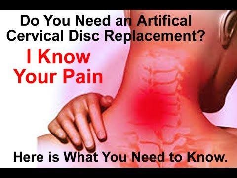 Artificial Cervical Disc Replacement Surgery vs Anterior Cervical Disc F...