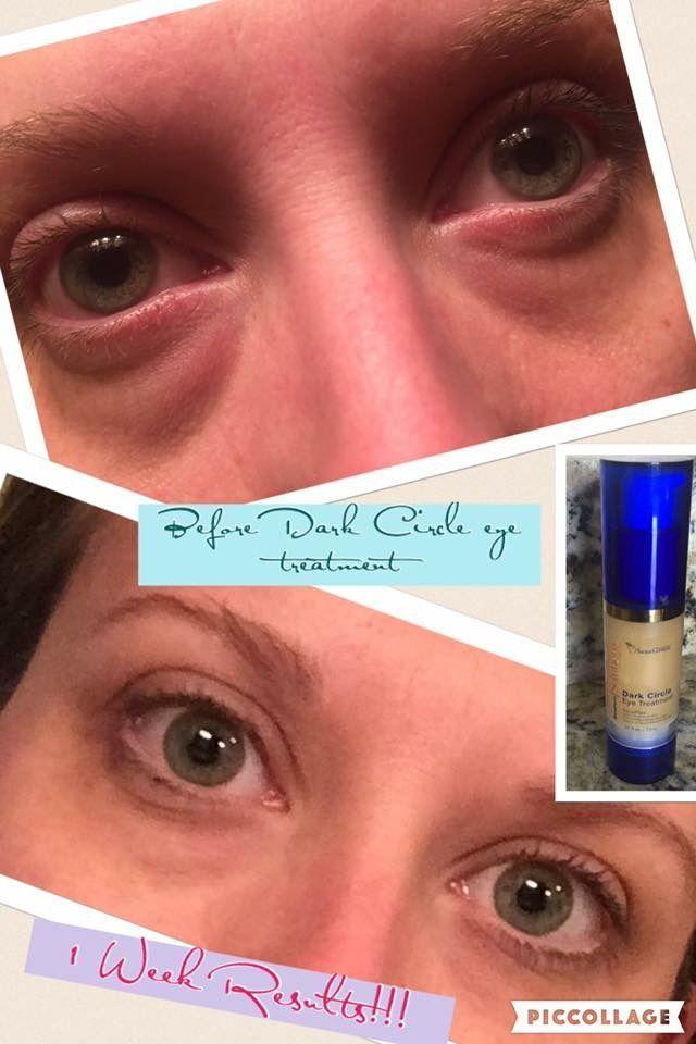 Dark circle eye cream #EyeCreamFor30S | Eye Cream For 30S | Anti